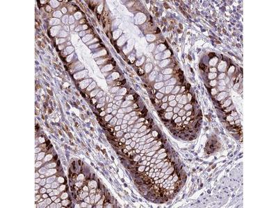 Anti-ARMCX6 Antibody