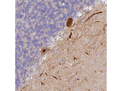 Anti-TRIM3 Antibody