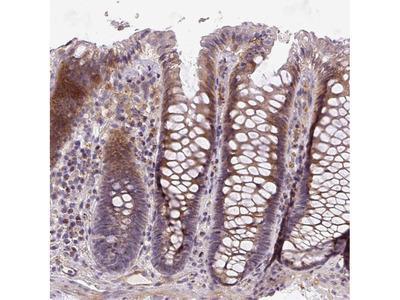 Anti-RNF170 Antibody