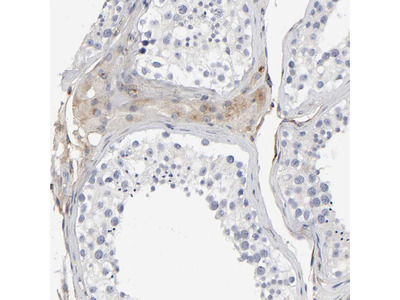 Anti-LRP1 Antibody