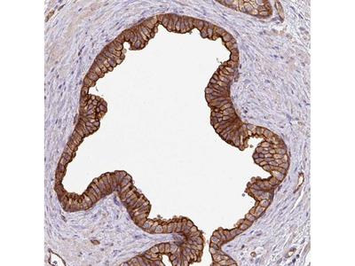 Anti-LRRC53 Antibody