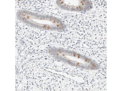 Anti-SPAG1 Antibody