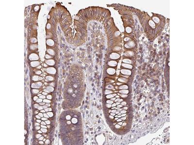 Anti-VENTX Antibody