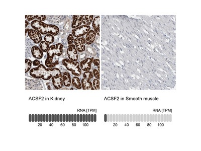 Anti-ACSF2 Antibody