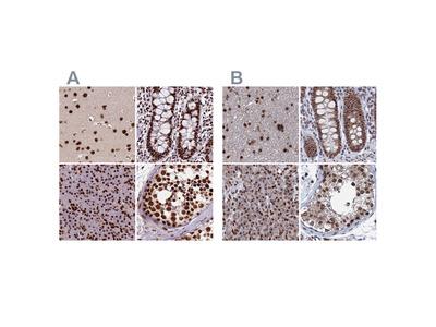 Anti-CTB-50L17.10 Antibody