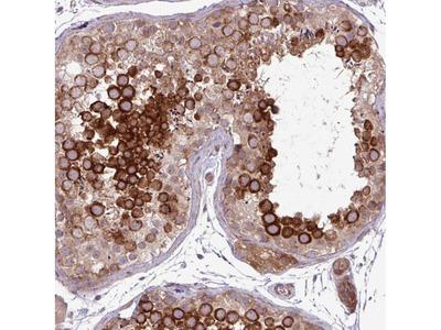 Anti-CNTRL Antibody