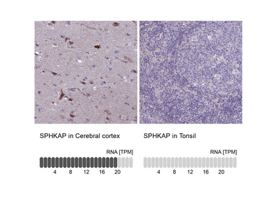 Anti-SPHKAP Antibody