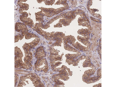 Anti-CFAP97 Antibody