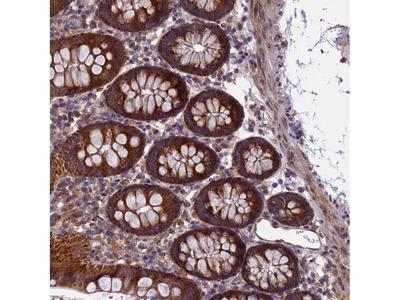 Anti-ACAD8 Antibody