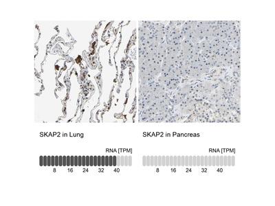 Anti-SKAP2 Antibody