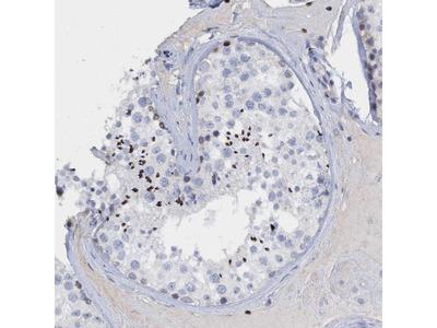 Anti-CBX2 Antibody