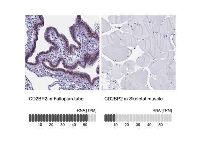 Anti-CD2BP2 Antibody