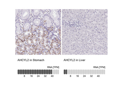 Anti-AHCYL2 Antibody