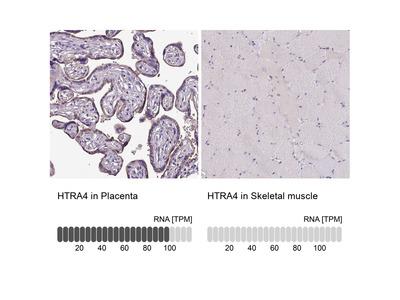 Anti-HTRA4 Antibody