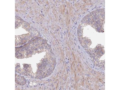 Anti-ABCC10 Antibody