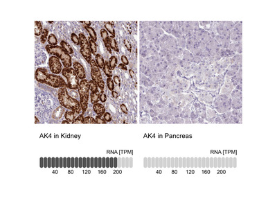 Anti-AK4 Antibody