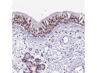 Anti-TBC1D26 Antibody
