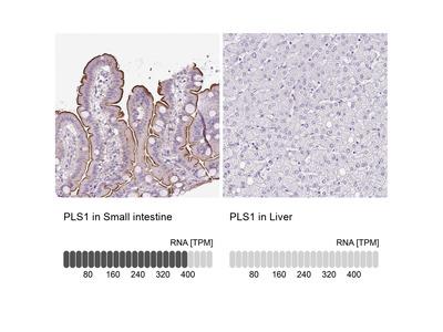 Anti-PLS1 Antibody