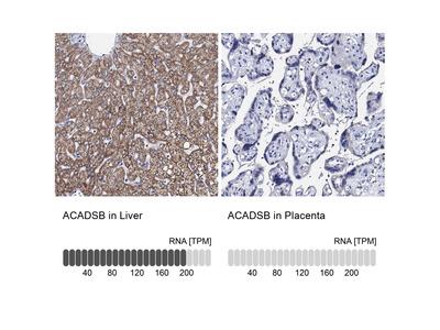 Anti-ACADSB Antibody