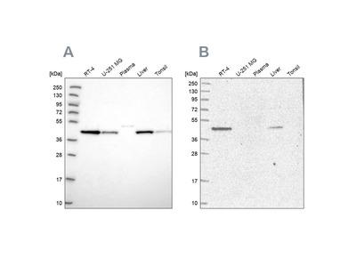 Anti-AHCY Antibody