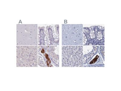 Anti-CYP51A1 Antibody