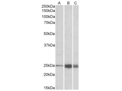 anti Fast skeletal muscle Troponin I (83-95)