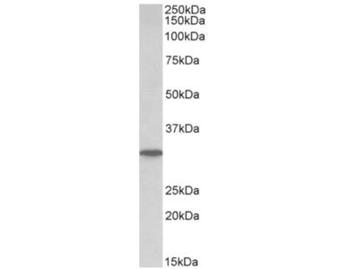 anti NP (142-153)
