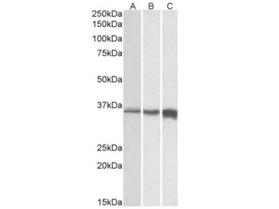 anti Fast skeletal muscle Troponin T (C-term)