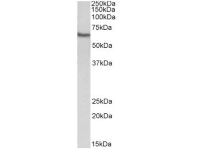 anti CD224 / GGT1