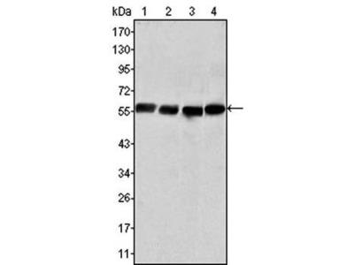 Vimentin antibody