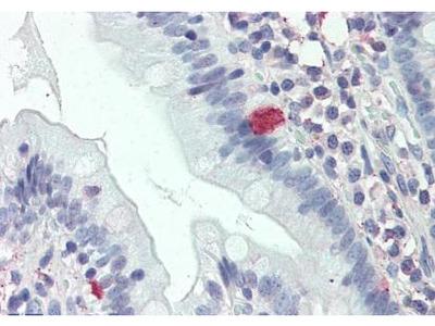 THEM6 antibody