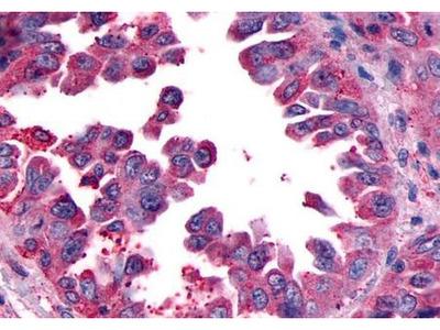 CGRP receptor antibody