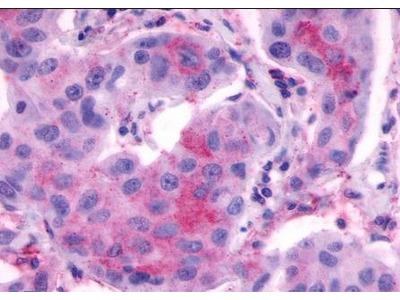 LHCGR antibody