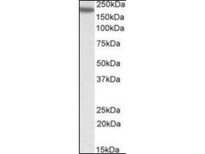 LFA 1 antibody