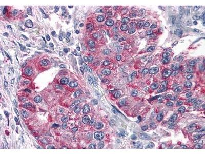 T1R3 antibody
