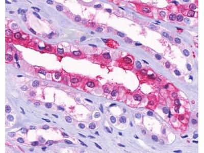 GPR91 antibody