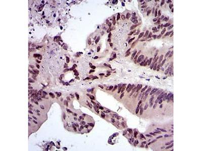 FOS antibody