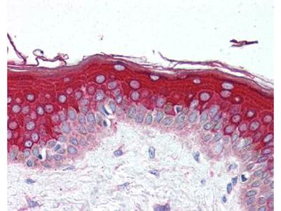 LST8 antibody
