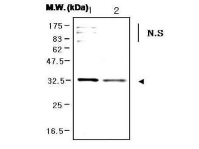 PORIN antibody