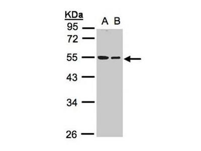 TUBB1 antibody