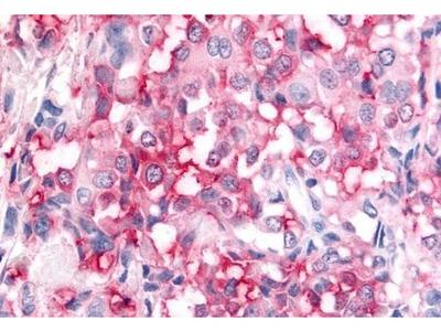 ADAMTS5 antibody