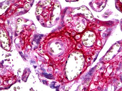 CCA antibody