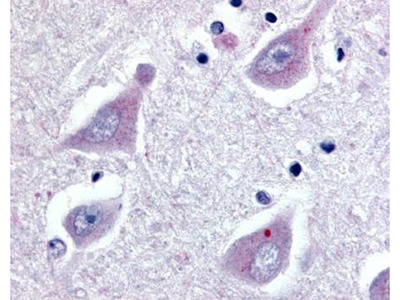 GPR30 antibody