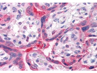 QSOX2 antibody