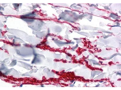 GAREM antibody