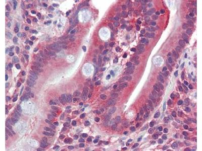 GLUT5 antibody
