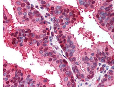CDKN2A antibody