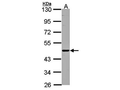 ENTPD6 antibody