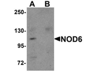NOD6 antibody