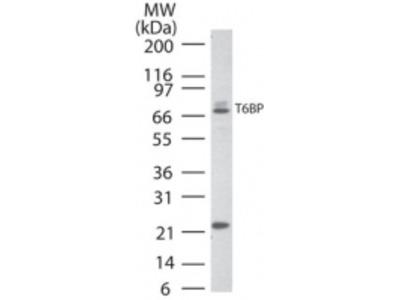 TRAF6 Binding Protein Antibody